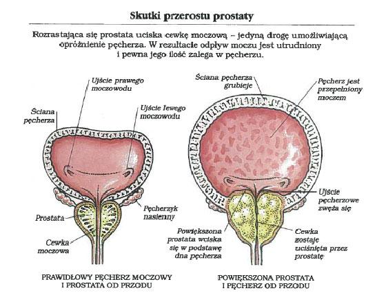 skutki-przerostu-prostaty