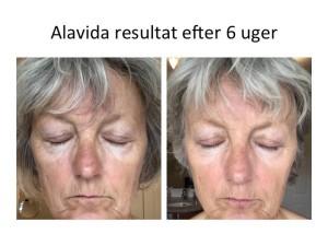 alavida4